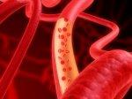 Лечение аневризма аорты