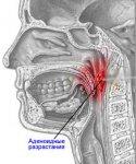 Аденоиды. Методы лечения