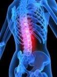 Лечим остеопороз народными методами